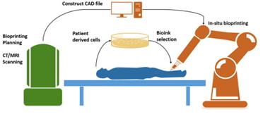 In-situ Bioprinting